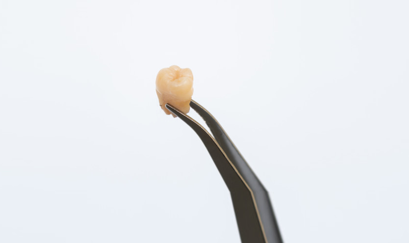 Tooth Extractions in O'Fallon MO